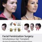 Hairline Feminization: Hair transplant options in facial feminization