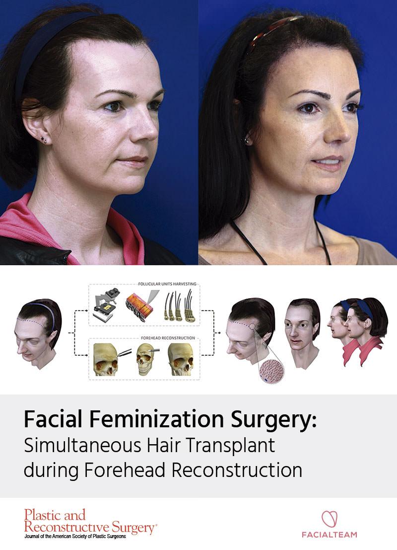 hairline feminization surgery