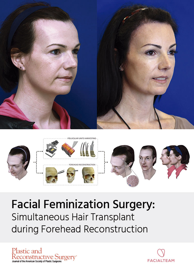 hairline feminization surgery