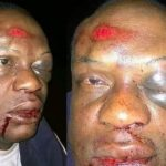 No evidence that man brutalised was APC door-to-door campaign leader
