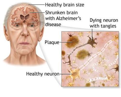 Alzheimer's Disease Detection