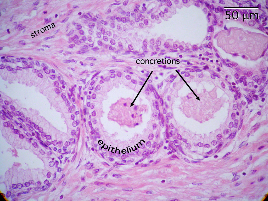 Histology Male Reproduction Prostate