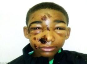 Police tasered a handcuffed boy....