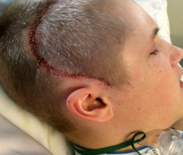 He Suffered Brain Damage Strokes Doctors Said He Had A 50 Chance Of Survival God Had Other Plans Faithreel Com
