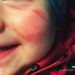 Kind, Verletzung,