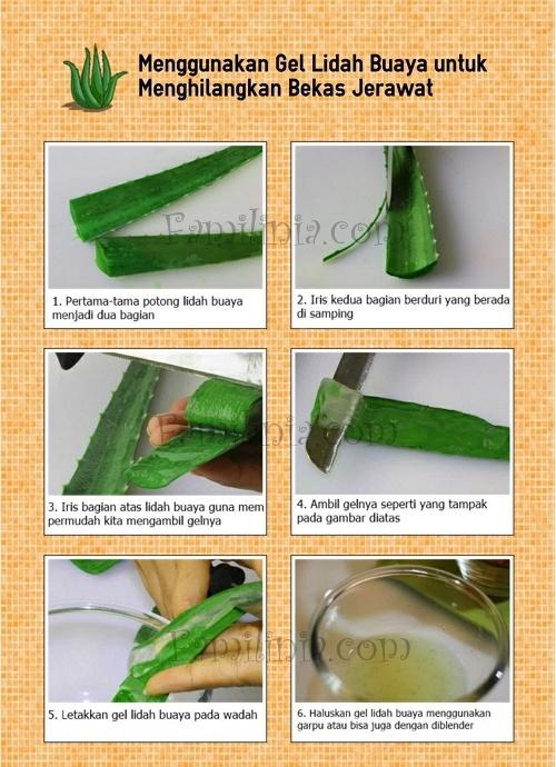 Cara menghilangkan bekas jerawat dengan lidah buaya