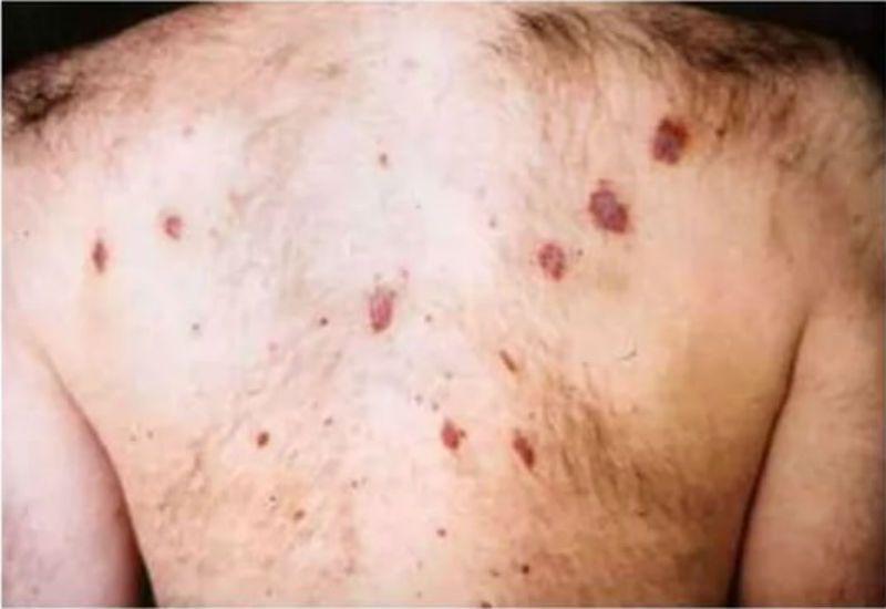 tecken på hiv