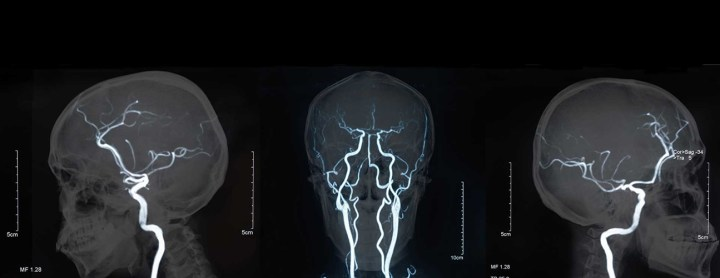 brain vessels angiogram banner