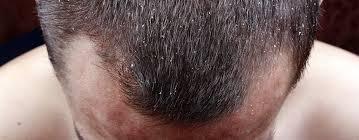 قشرة الرأس و تساقط الشعر