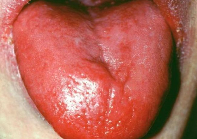 langue rouge