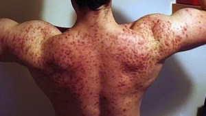 Efeitos Colaterais da Testosterona