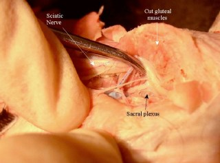 sacral_plexus_labeled