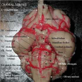Ventral view of the brain Cranial Nerves labeled