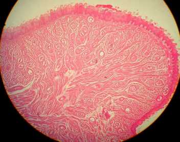 At 100x or 400x: Illustrate several cysts in striated muscle (tongue)