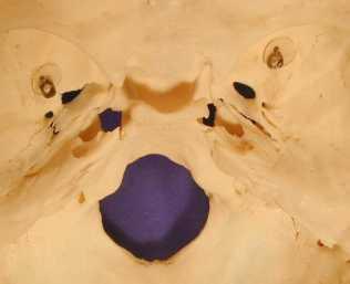 View of Floor of Cranium