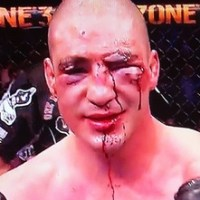 Worst Injuries in UFC History