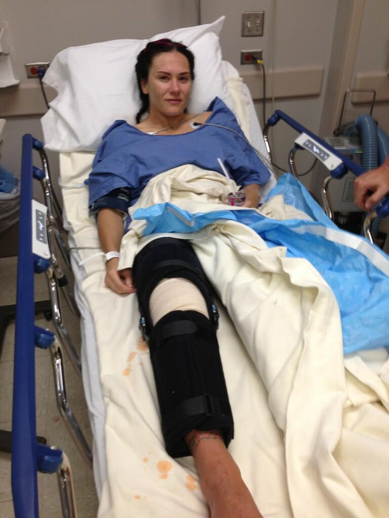 Zingano Out of TUF18, knee injured