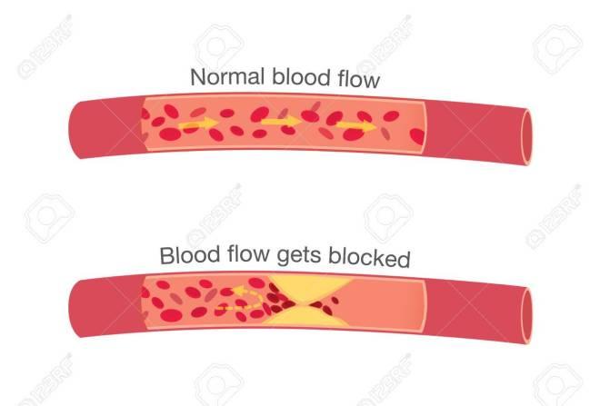 tekening van normale bloedstroom en een geblokkeerde bloedstroom