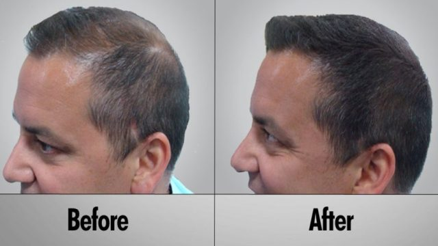 Effective prevention for hair loss - Oolong Tea Health Benefits