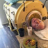 There is still someone in the US living in an iron lung