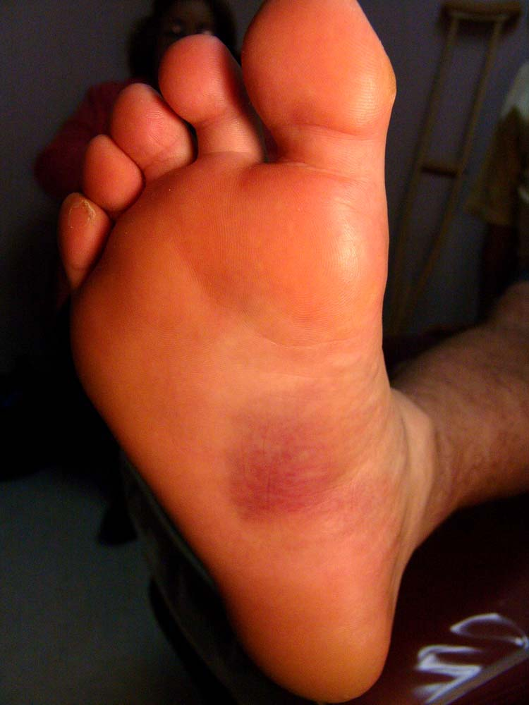 Sting on bottom of foot