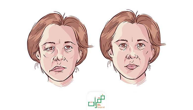 أهم 7 أعراض لتتعرف على التهاب العصب السابع فقرات
