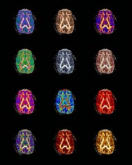 Collage of Axial MRI Scans