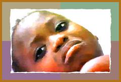 Malaria-patient
