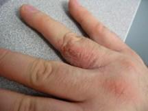 eczema 2 by h8rnet