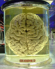 Human brain - please add comment and fav this if you blog with it. by Gaetan Lee