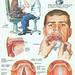 larynx07