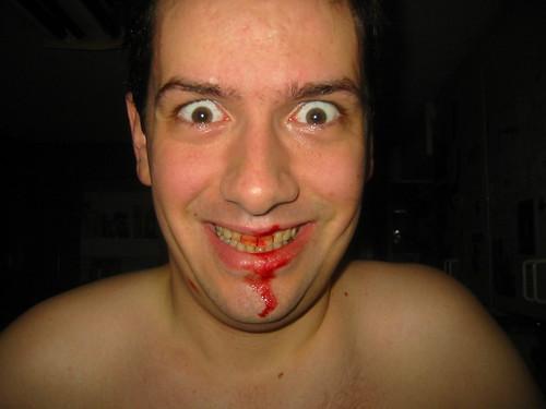 20050723 - Clint cut himself shaving - 100-0005 - Clint bleeding, funny face