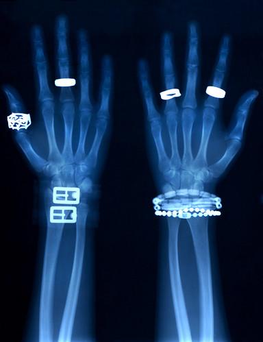 Jewelry X-Ray