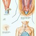 larynx15