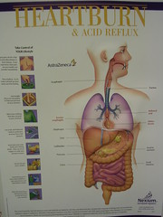 Heartburn And Acid Reflux