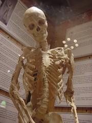 Heterotopic ossification