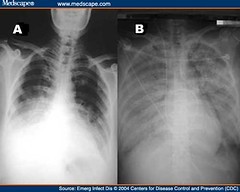 chest radiographs