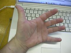 Hand for Shambly