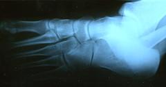 Fractured Metatarsus 1