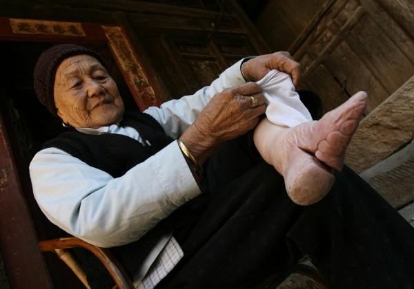 Chinese Bound Feet(5)