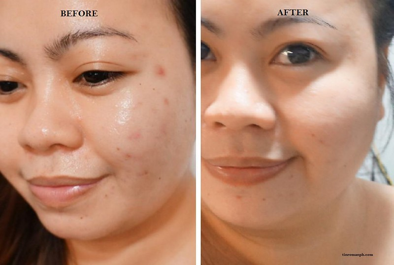 Skin Potions Snow Berry Sleeping Cream Mask Review Before and After