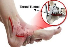 Pain in the back of the heel - Tarsal Tunnel