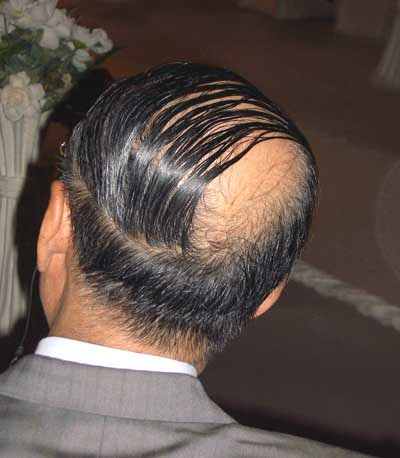Great Comb Over4