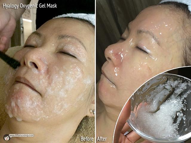 Skin Science Hyalogy Oxygenic Gel Mask