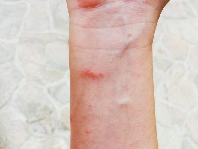 Quallenkäse am Unterarm
