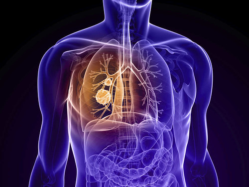 Mesothelioma Prognosis to Draw the Condition of the Sufferer