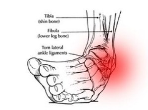 High Ankle Sprain Recovery Time
