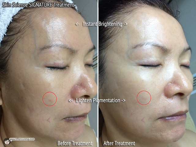 Skin Science Signature Treatment Before After