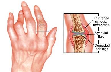 Kenapa Jari Tangan Kaku Dan Sakit Di Pagi Hari