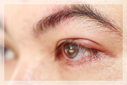 Cara Mengempeskan Mata Bintitan Dengan Cepat
